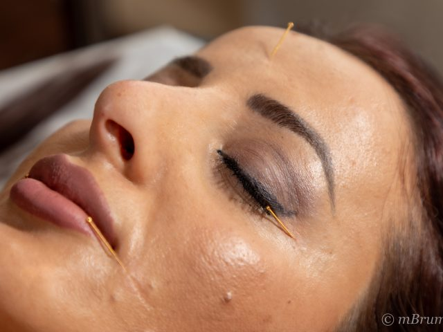 Acupuncture faciale